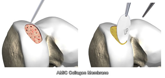 AMIC Collagen Membrane