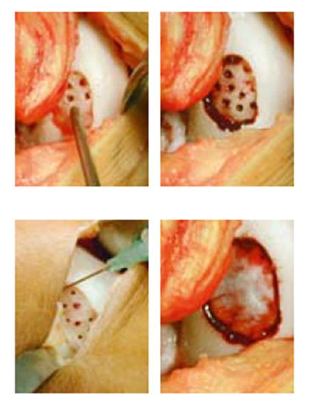 AMIC Surgery