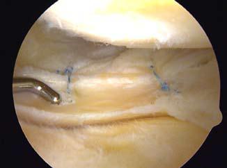 Meniscal repair photo