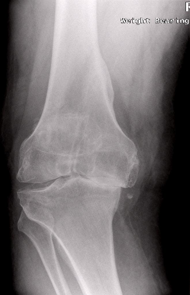 Arthritic Knee Xray
