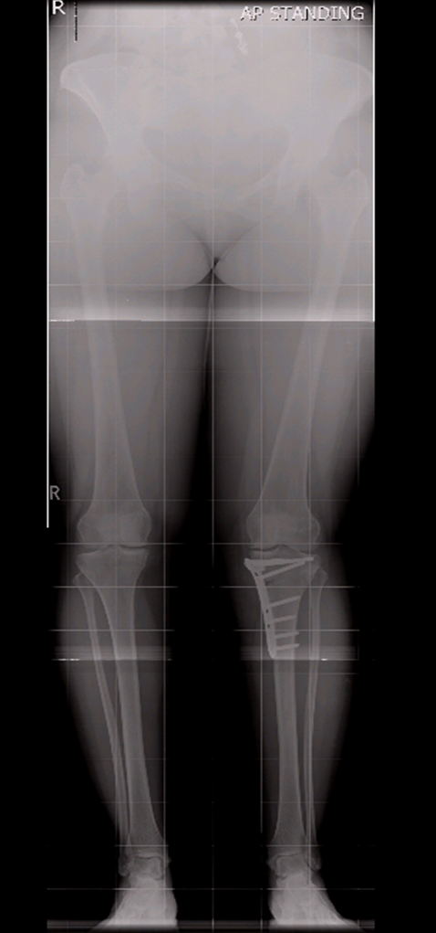 Postoperative X-Ray Views Showing Knee Alighment Adjustment
