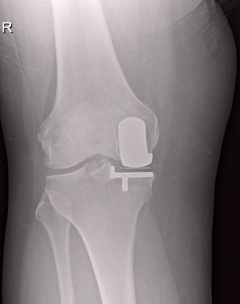 Partial Knee Replacement X-Ray
