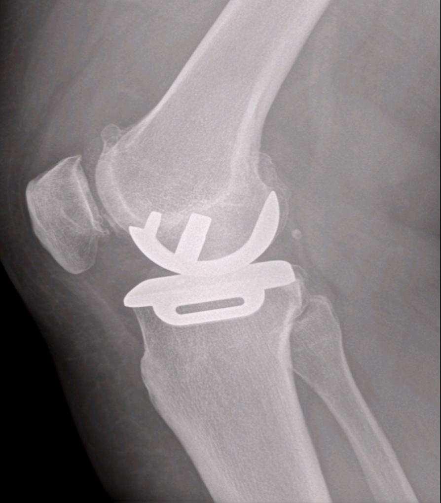 Post-operative X-Ray
