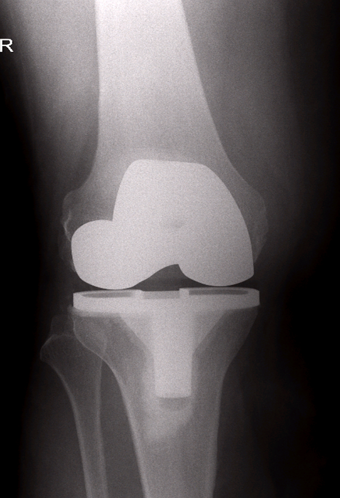 total-knee-repacement-xray2